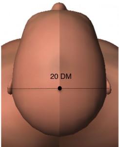 20 DM